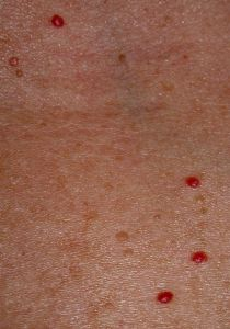 cherry angiomas associated with bromine toxicity and iodine, Skeleton