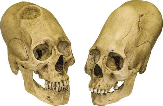 Peruvian elongated skulls: examples of artificial cranial modification