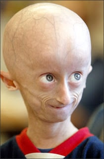 Child suffering from progeria.