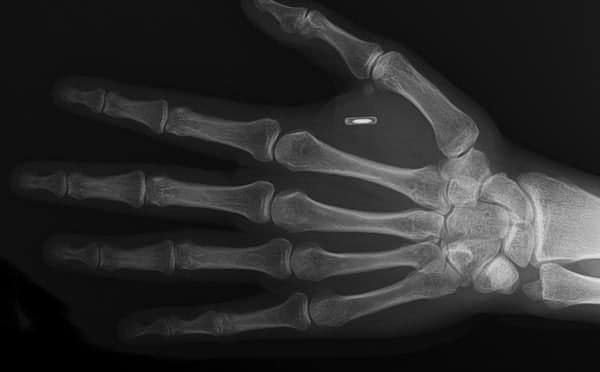 Implants show up in x-rays.
