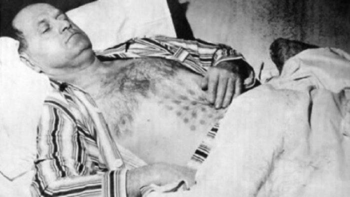 Stefan Michalak with the strange grid markings on his torso