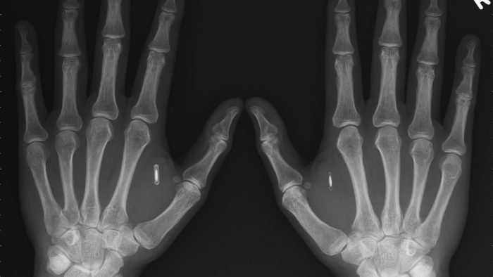 A X-ray of a pair of hands with an implant in them